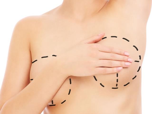 mamoplastia1